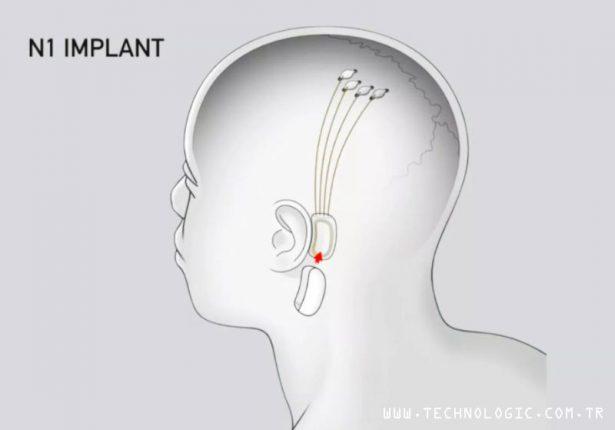Elon Musk Neuralink_n1_implant